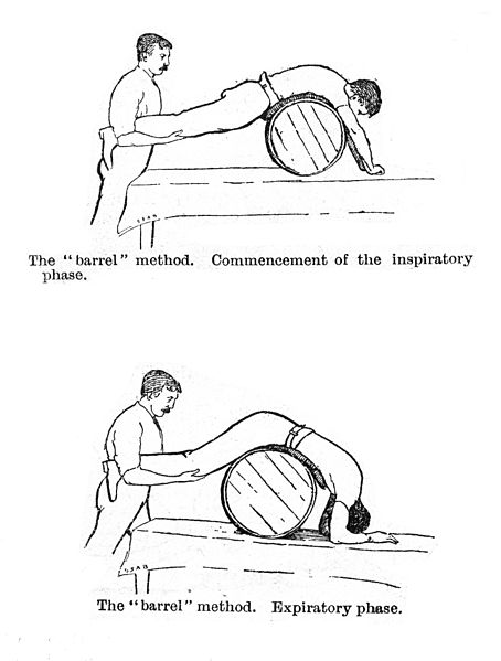 """This image is labeled """"Artificial respiration by rolling a man prone on a barrel."""""""