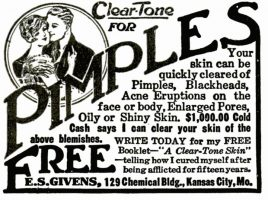 Clear-Tone for Pimples, Popular Mechanics, September 1923, page 138.