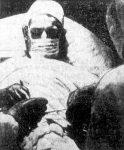 Dr. George C. Balderston performing surgery on himself.