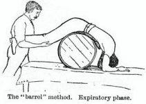 Barrel method of artificial respiration