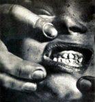 Deformed Jaw